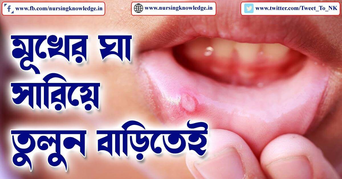 MOUTH ULCER (মুখের ঘা) TREATMENT IN BENGALI