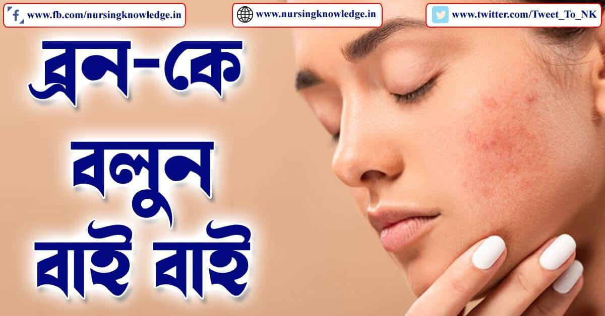 PIMPLE OR ACNE (ব্রণ) HOME TREATMENT IN BENGALI